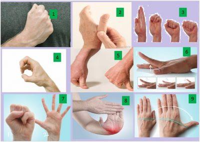 exercises for rheumatoid arthrits in hands