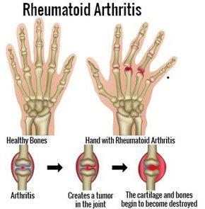 treatment for rheumatoid arthritis