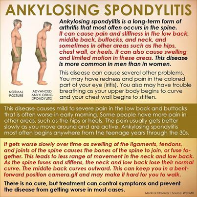 symptoms of ankylosing spondylitis in females