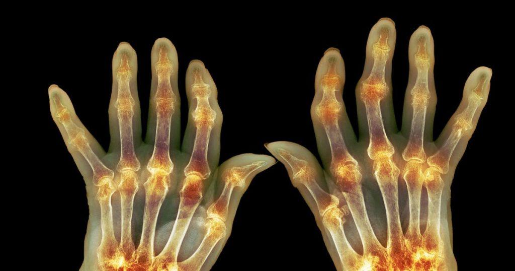 rheumatoid arthritis in hands