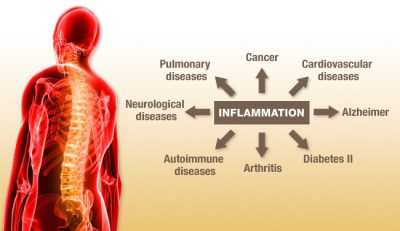 joint inflammation diseases