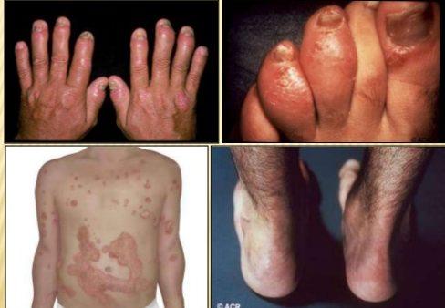 psoriatic arthritis images