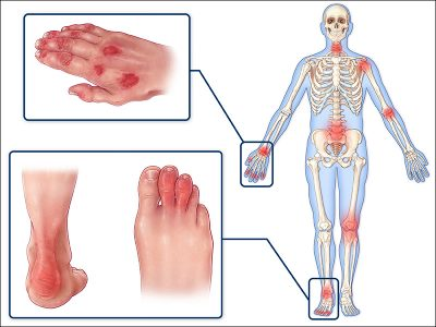 psoriatic arthritis symptoms