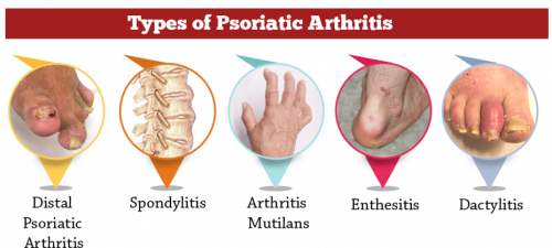 psoriatic arthritis types