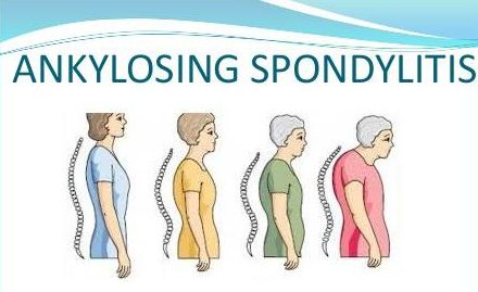 what is the best treatment for ankylosing spondylitis