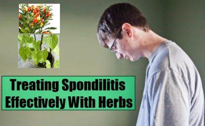 treatment for ankylosing spondylitis