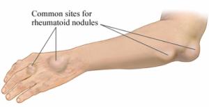 rheumatoid arthritis elbow