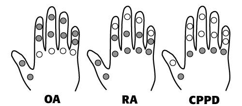 types of finger arthritis