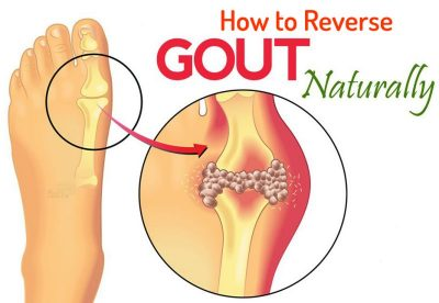 gout causes