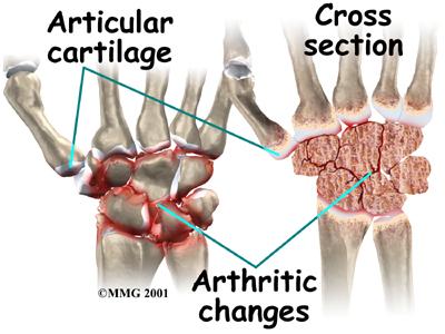arthritis in the wrist