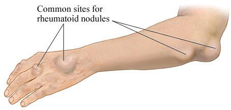 rheumatoid arthritis wrist nodules