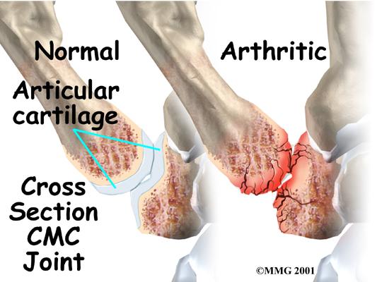 arthritis in the thumb