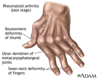 rheumatoid arthritis in thumb