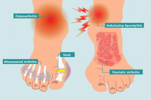 different types of arthritis in feet