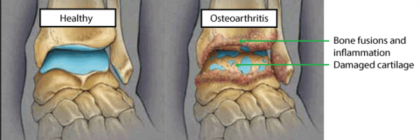 arthritis in the ankles