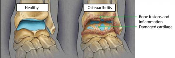 osteoarthritis knee treatment
