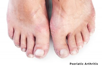 pictures of psoriatic arthritis in feet