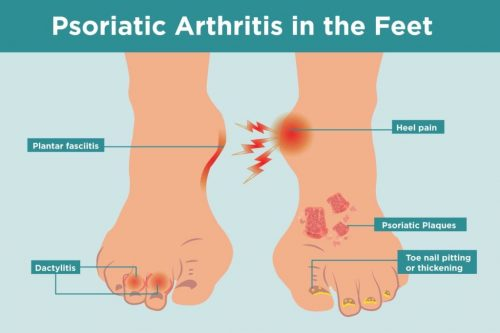 treatment of psoriatic arthritis