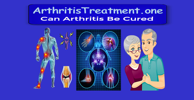 what is the cure for arthritis