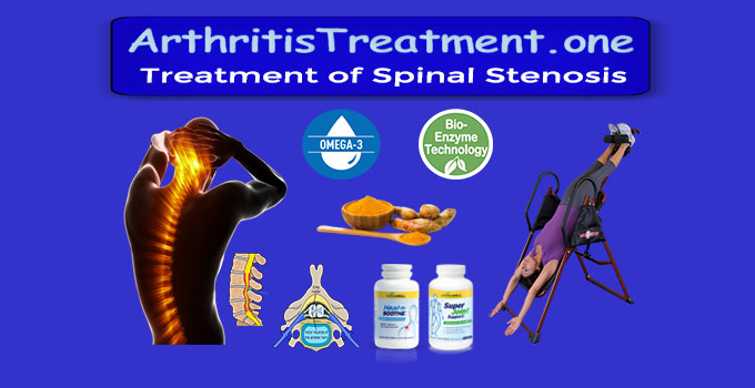 Natural Treatment for Spinal Stenosis