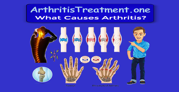 Cause of Arthritis