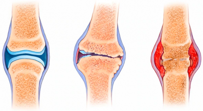 different types of arthritis