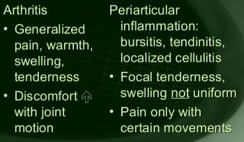 arthritis vs bursitis