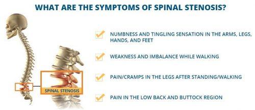 Spinal Stenosis Stenosis