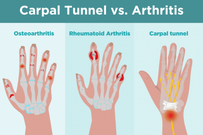 arthritis vs carpal tunnel syndrome