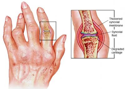 treatment for rheumatoid arthritis in the fingers