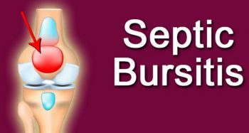 what is septic bursitis
